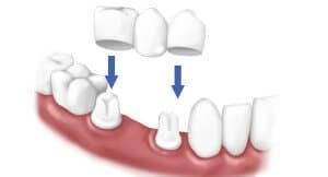 dental crowns humble texas dentistry